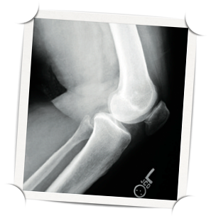 X-ray of a knee